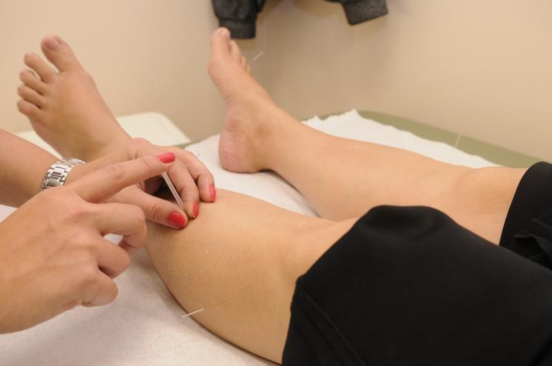 Akupunkturnåle i høj kvalitet